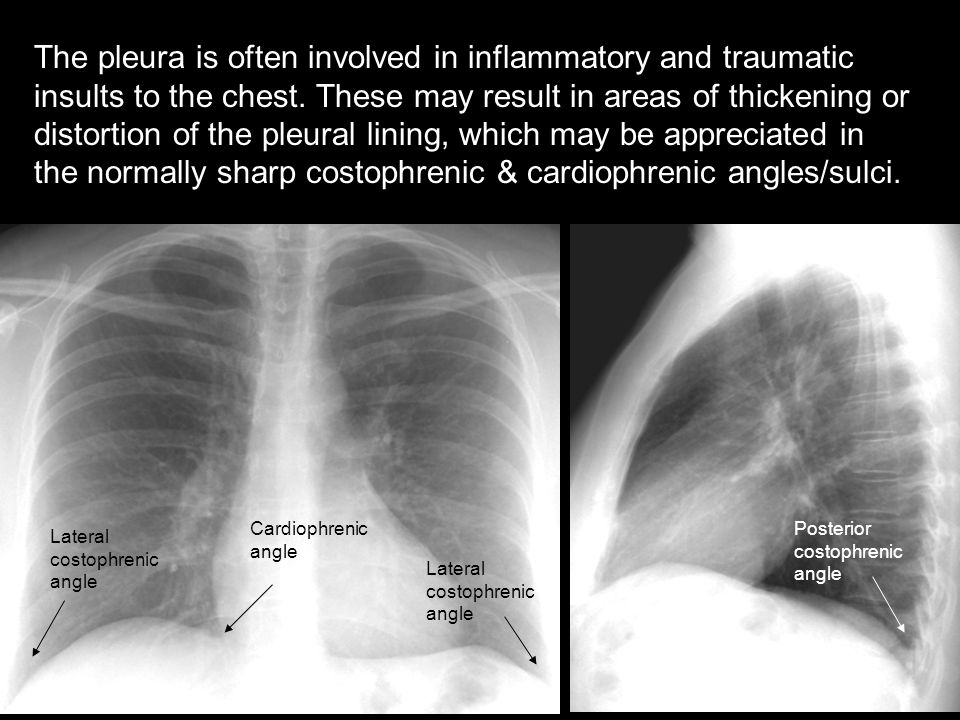 The pleura is often involved in inflammatory and traumatic insults to the chest. These may result in areas of thickening or distortion of the pleural lining, which may be appreciated in the normally sharp costophrenic & cardiophrenic angles/sulci.