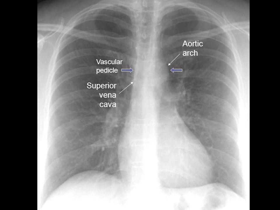 Aortic arch Vascular pedicle Superior vena cava