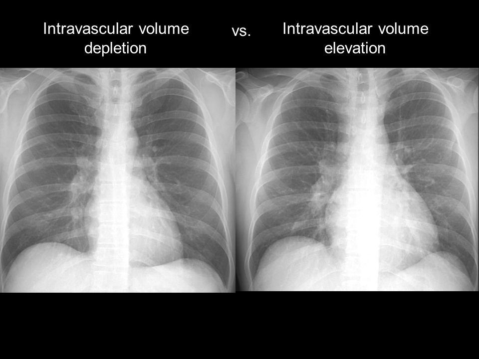 Intravascular volume depletion vs. Intravascular volume elevation