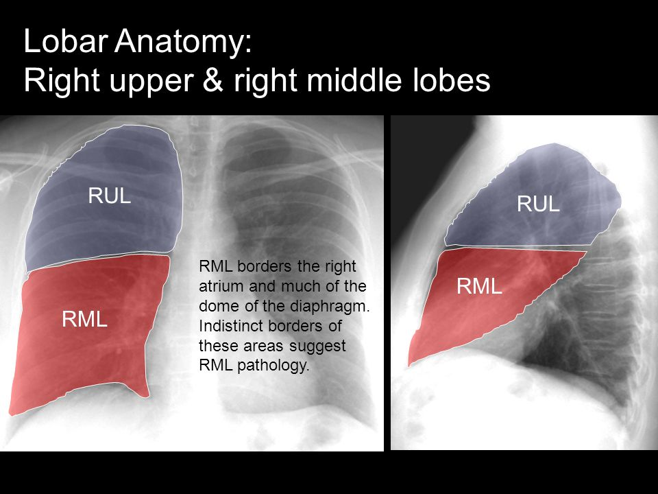 Right upper & right middle lobes