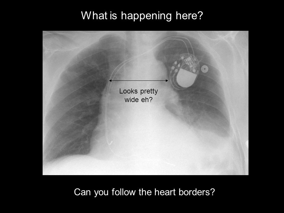 What is happening here Can you follow the heart borders