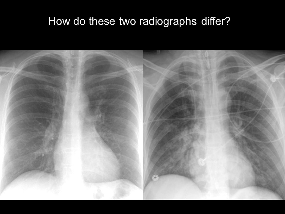 How do these two radiographs differ