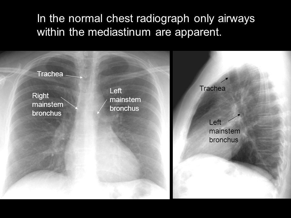 In the normal chest radiograph only airways within the mediastinum are apparent.