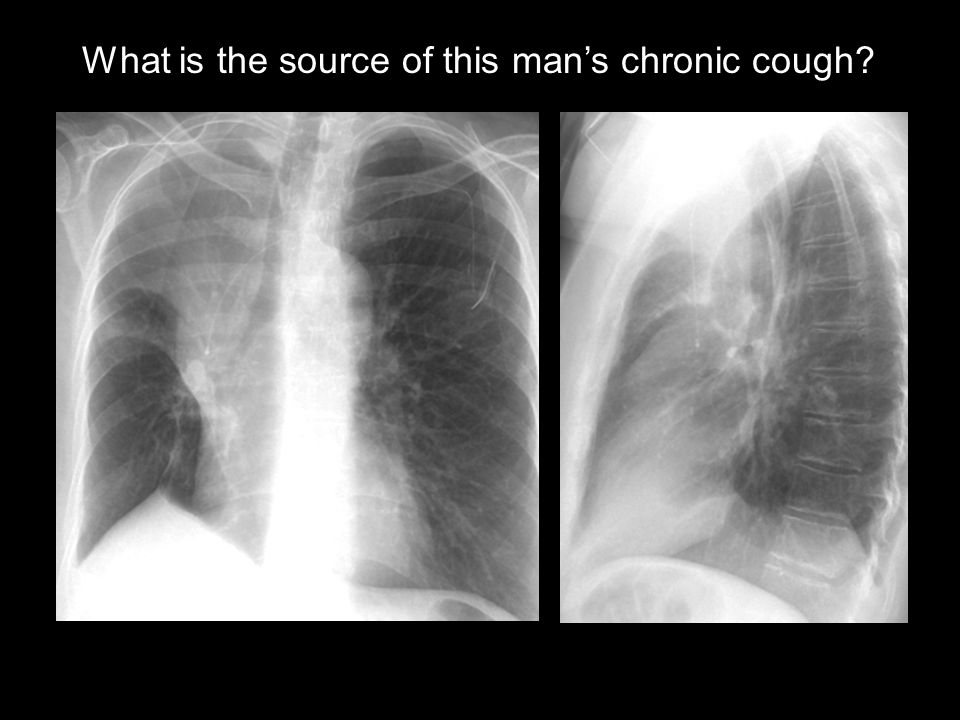 What is the source of this man's chronic cough