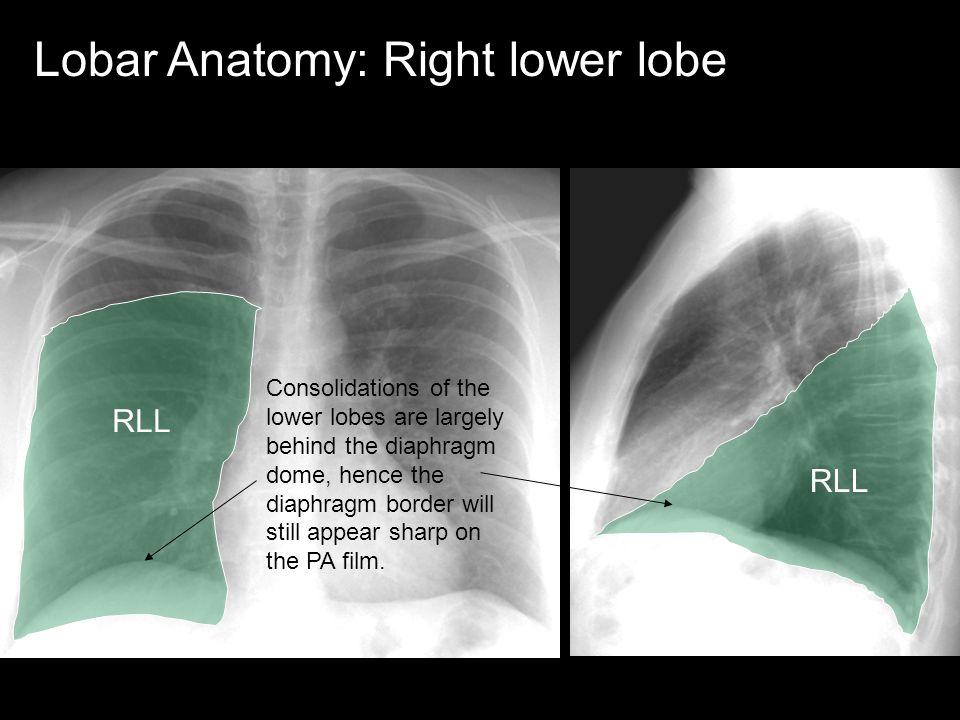 Lobar Anatomy: Right lower lobe