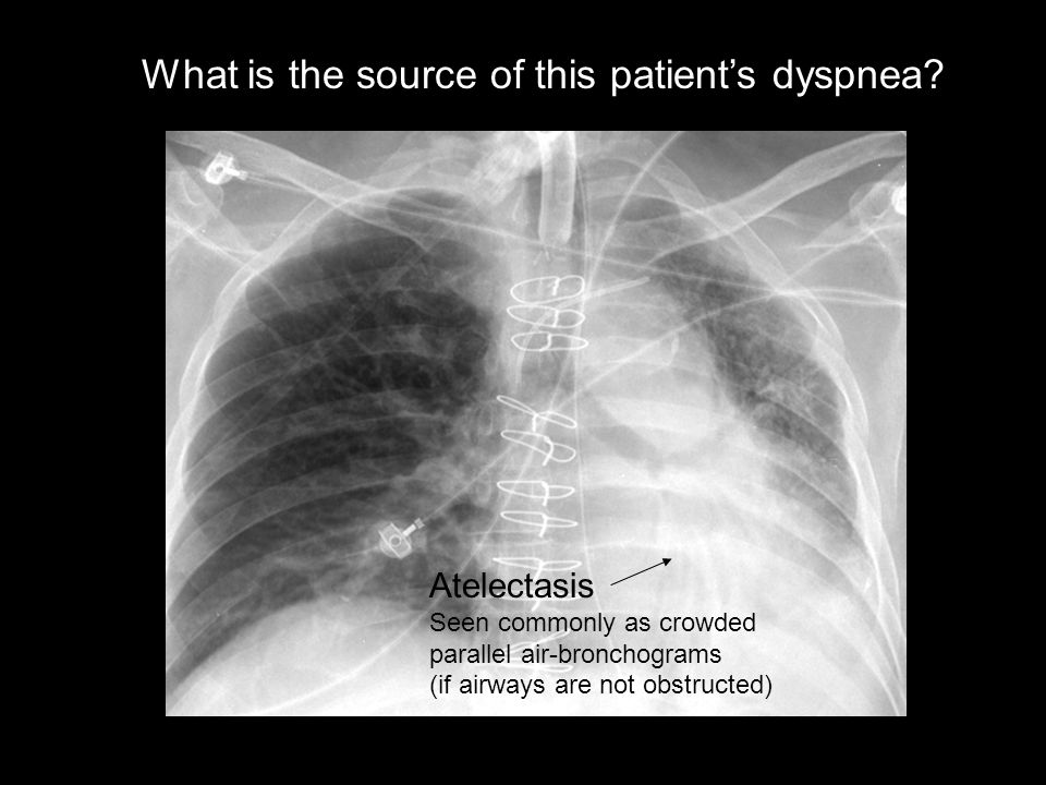 What is the source of this patient's dyspnea