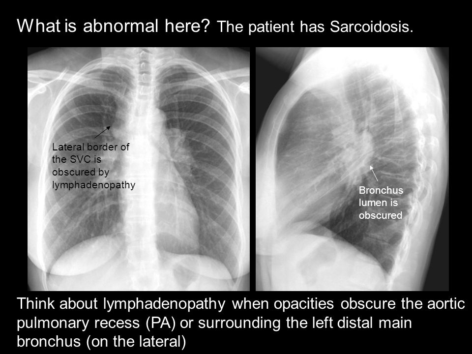 What is abnormal here The patient has Sarcoidosis.