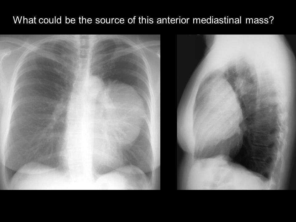 What could be the source of this anterior mediastinal mass