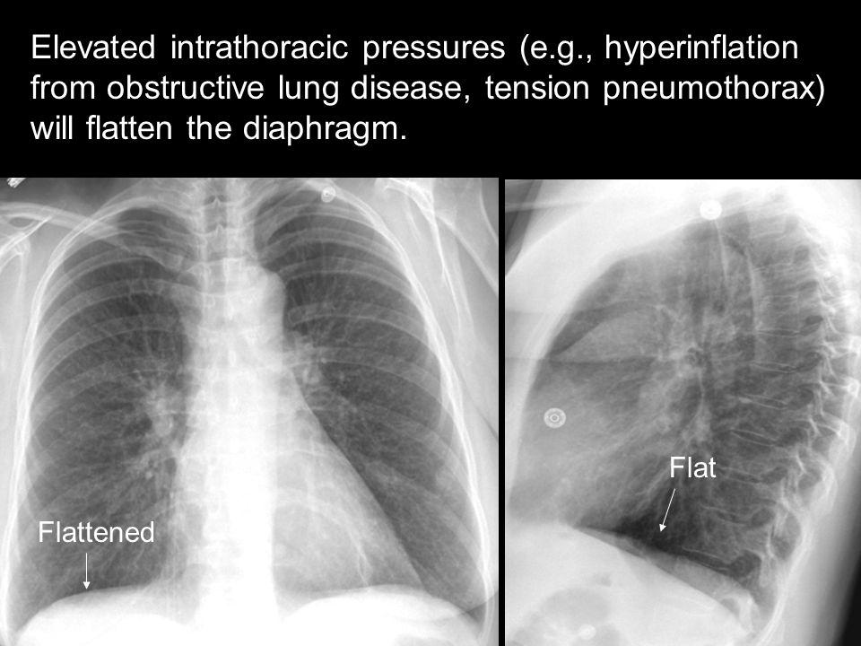 Elevated intrathoracic pressures (e. g