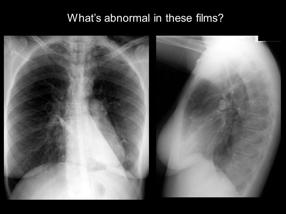 What's abnormal in these films