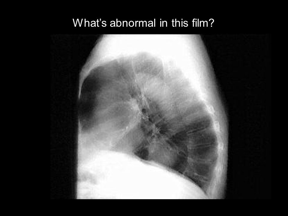 What's abnormal in this film