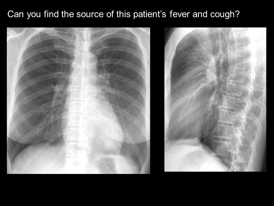 Can you find the source of this patient's fever and cough