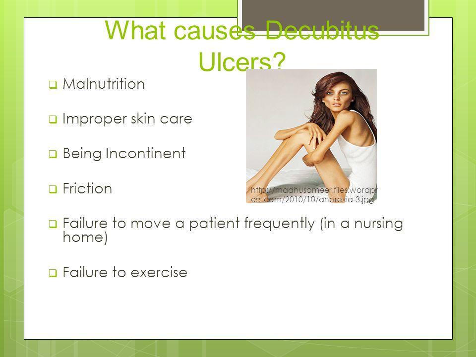 What causes Decubitus Ulcers