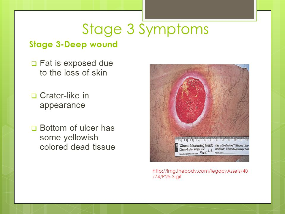 Stage 3 Symptoms Stage 3-Deep wound