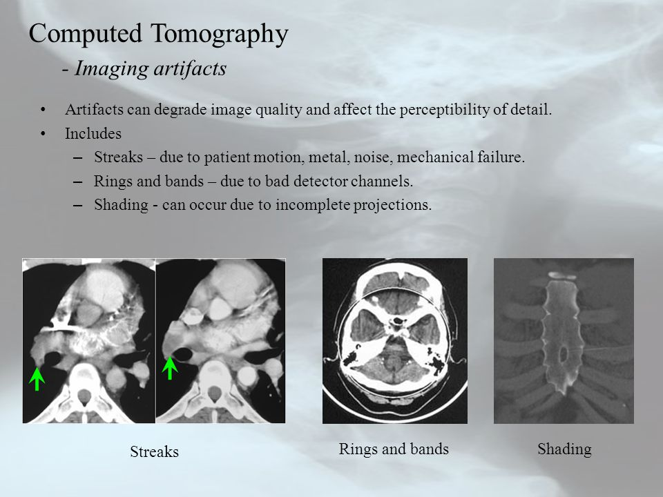 Computed Tomography - Imaging artifacts