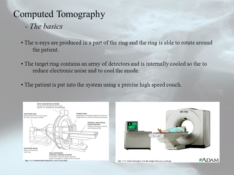 Computed Tomography - The basics