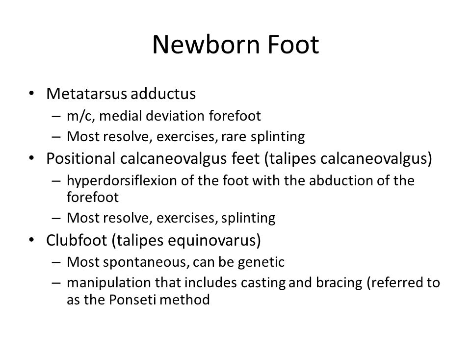 Newborn Foot Metatarsus adductus