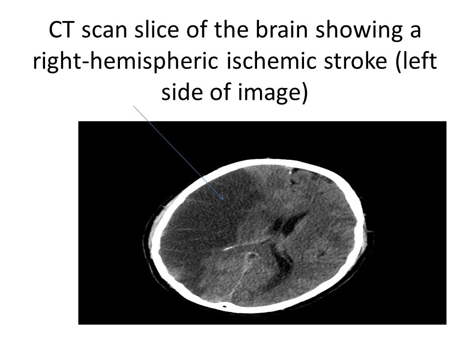 CT scan slice of the brain showing a right-hemispheric ischemic stroke (left side of image)