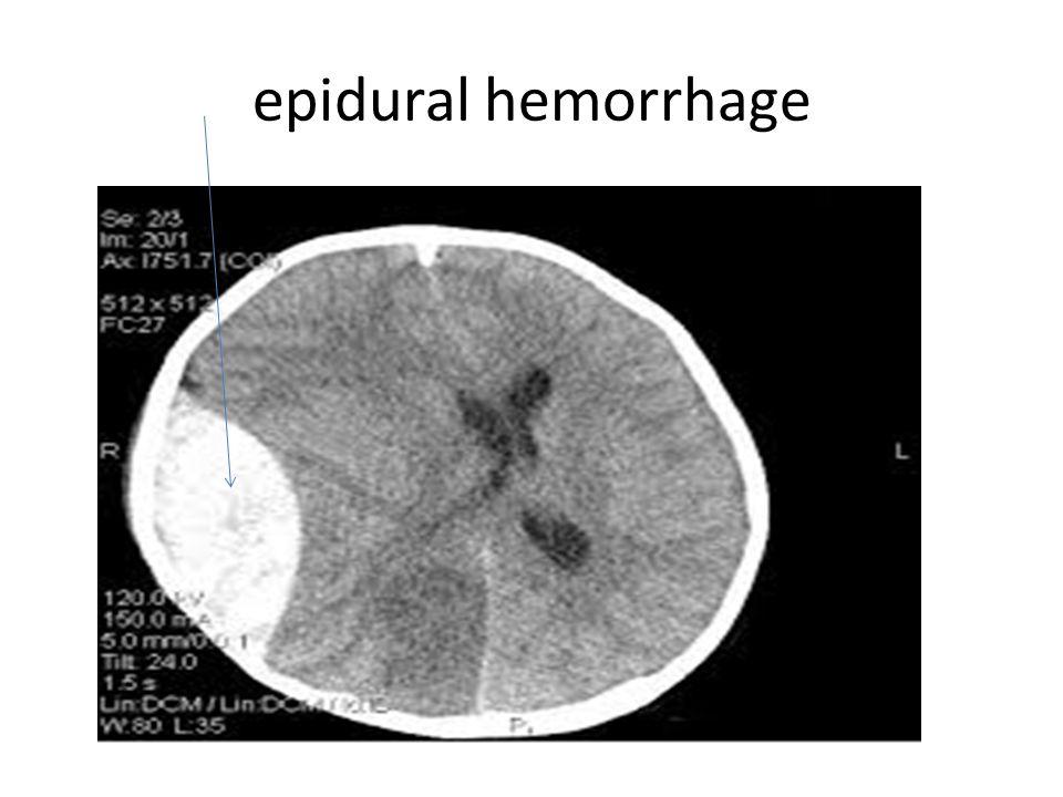 epidural hemorrhage