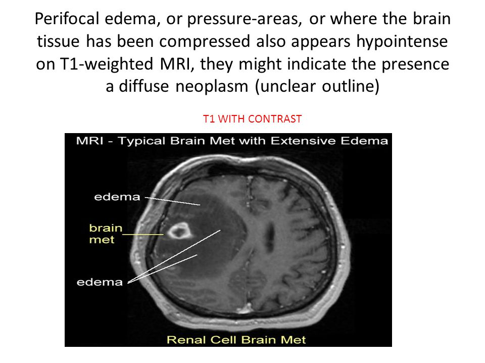 Perifocal edema, or pressure-areas, or where the brain tissue has been compressed also appears hypointense on T1-weighted MRI, they might indicate the presence a diffuse neoplasm (unclear outline)