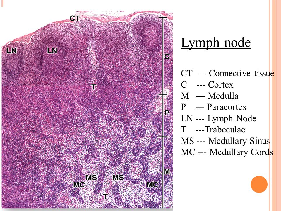 Lymph node CT --- Connective tissue C --- Cortex M --- Medulla P --- Paracortex LN --- Lymph Node T ---Trabeculae MS --- Medullary Sinus MC --- Medullary Cords
