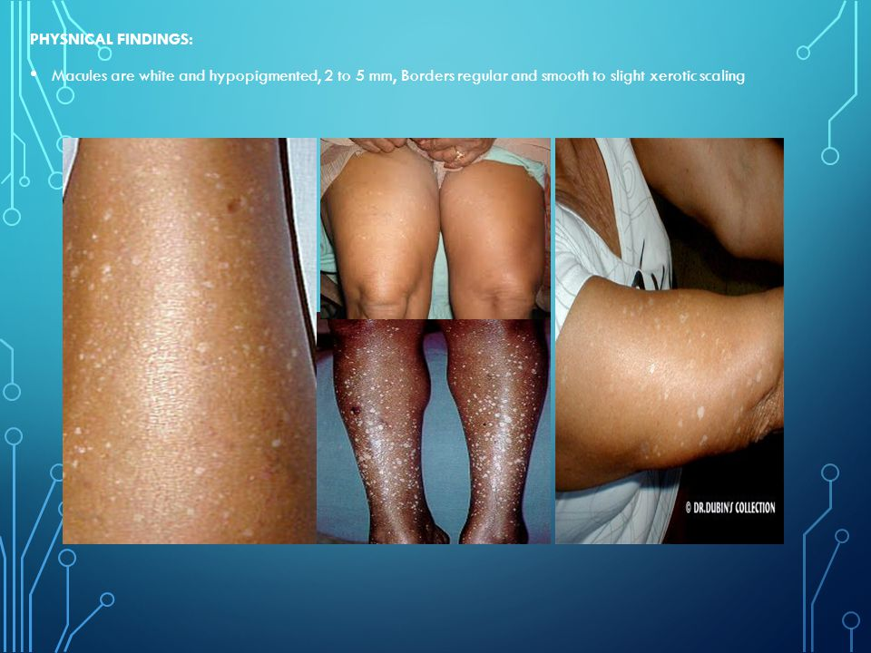 PHYSNICAL FINDINGS: Macules are white and hypopigmented, 2 to 5 mm, Borders regular and smooth to slight xerotic scaling.