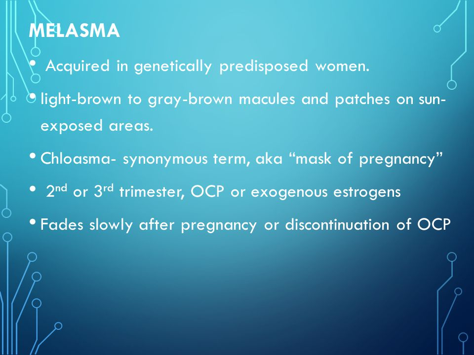 MELASMA Acquired in genetically predisposed women.