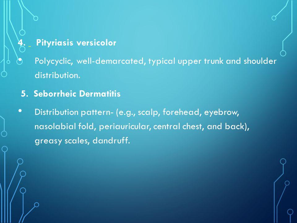 4. Pityriasis versicolor