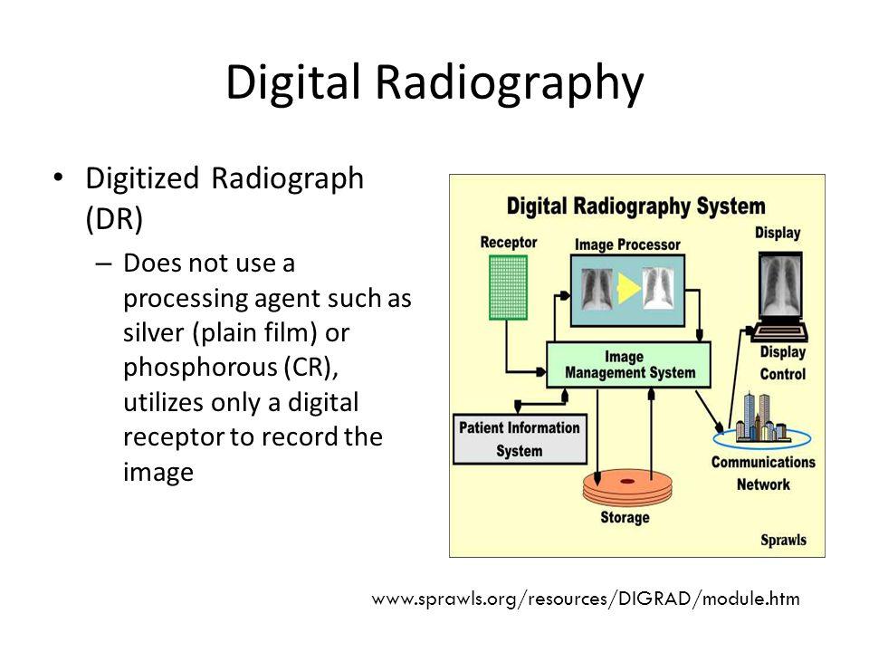 Digital Radiography Digitized Radiograph (DR)