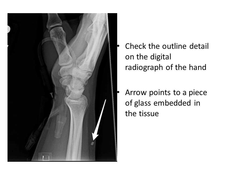 Check the outline detail on the digital radiograph of the hand