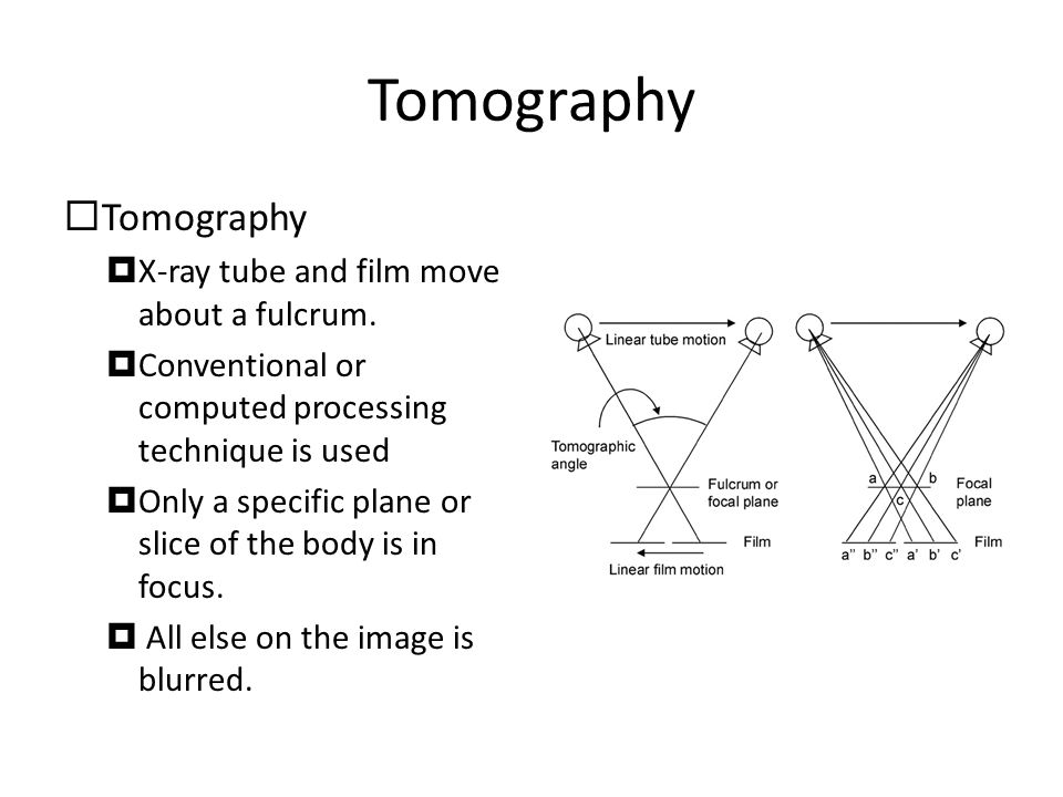 Tomography Tomography X-ray tube and film move about a fulcrum.