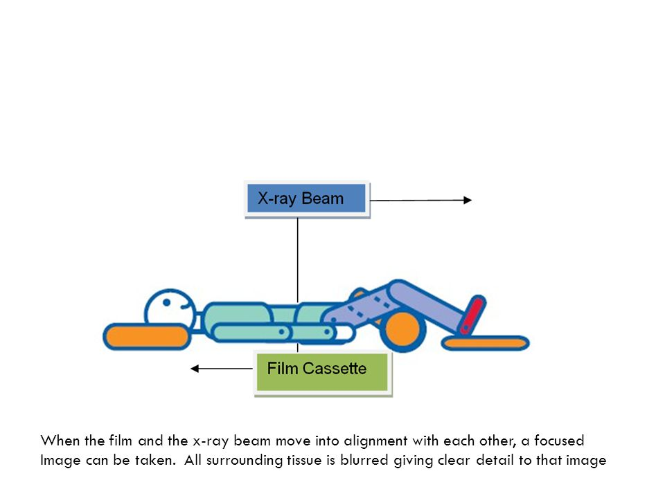 When the film and the x-ray beam move into alignment with each other, a focused