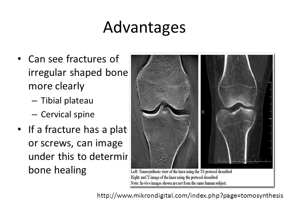 Advantages Can see fractures of irregular shaped bones more clearly