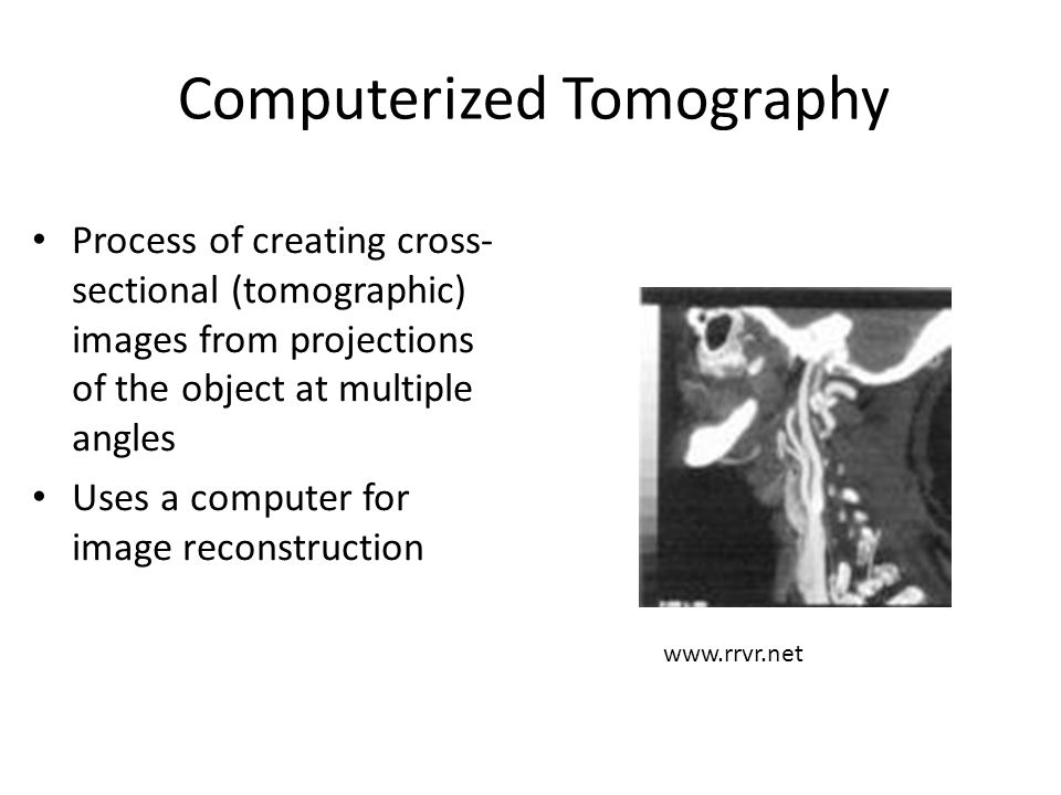 Computerized Tomography