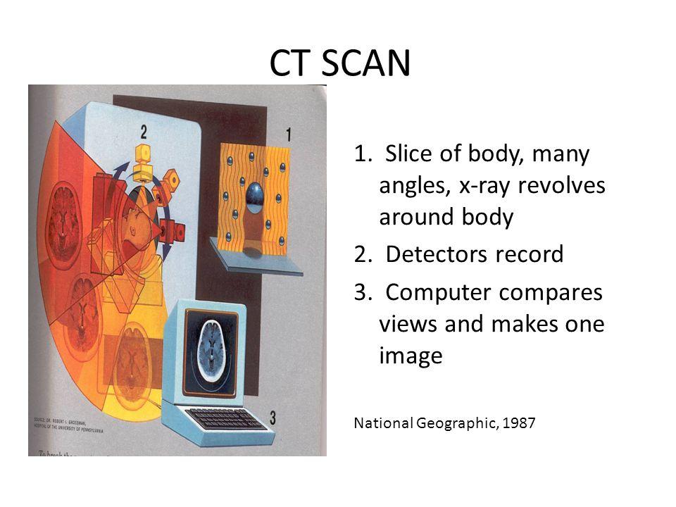 CT SCAN 1. Slice of body, many angles, x-ray revolves around body