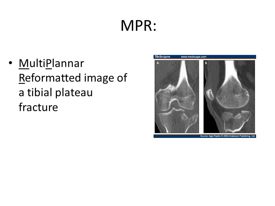 MPR: MultiPlannar Reformatted image of a tibial plateau fracture