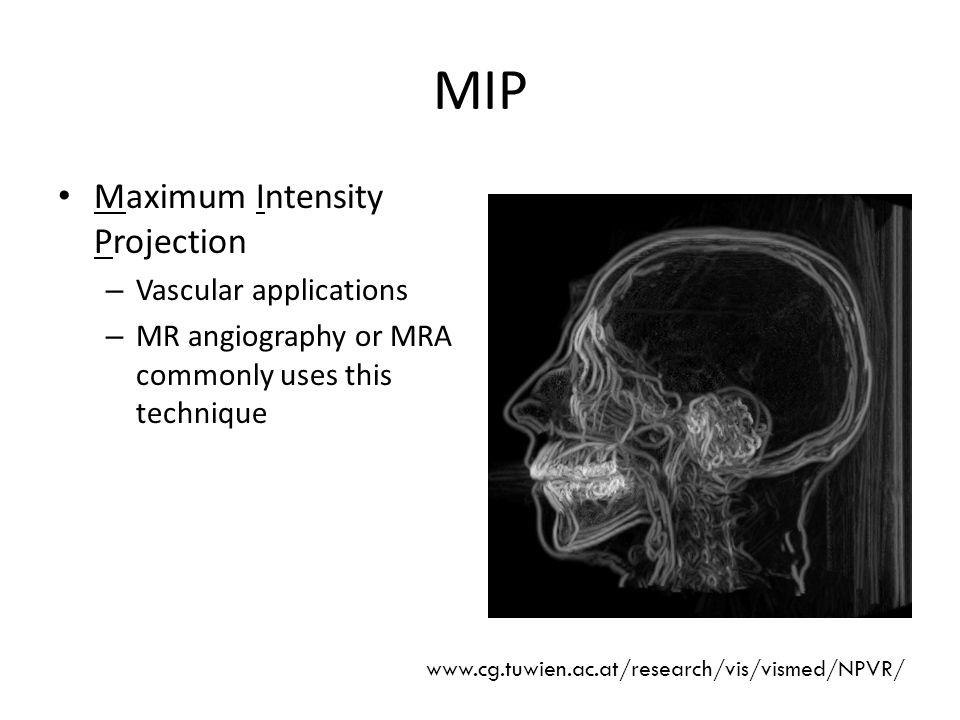 MIP Maximum Intensity Projection Vascular applications