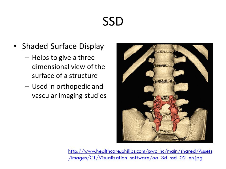 SSD Shaded Surface Display