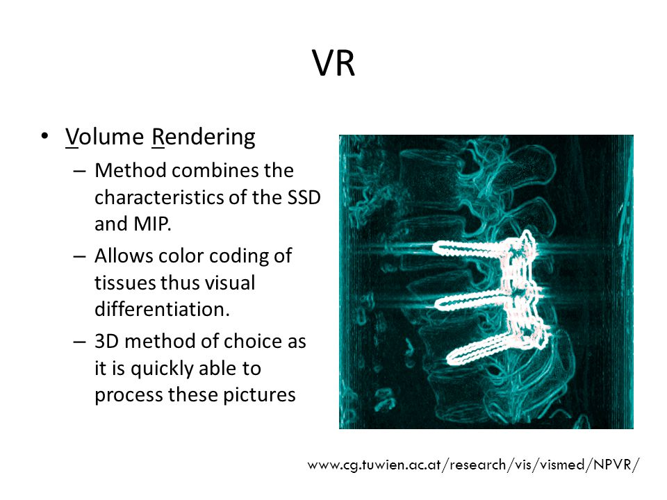 VR Volume Rendering. Method combines the characteristics of the SSD and MIP. Allows color coding of tissues thus visual differentiation.
