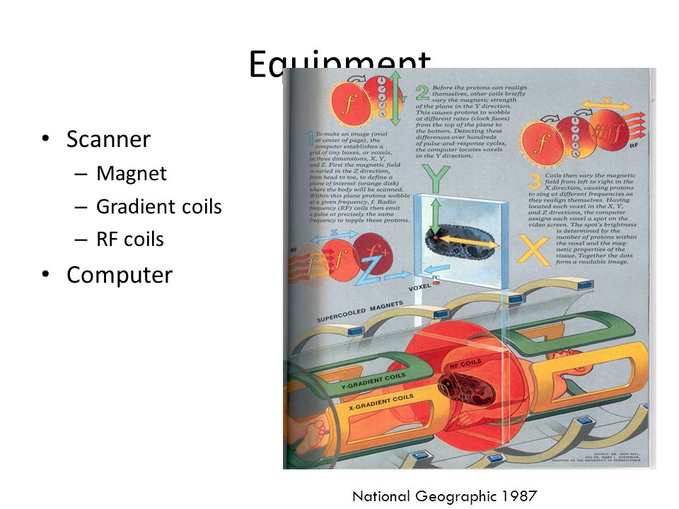 Equipment Scanner Computer Magnet Gradient coils RF coils