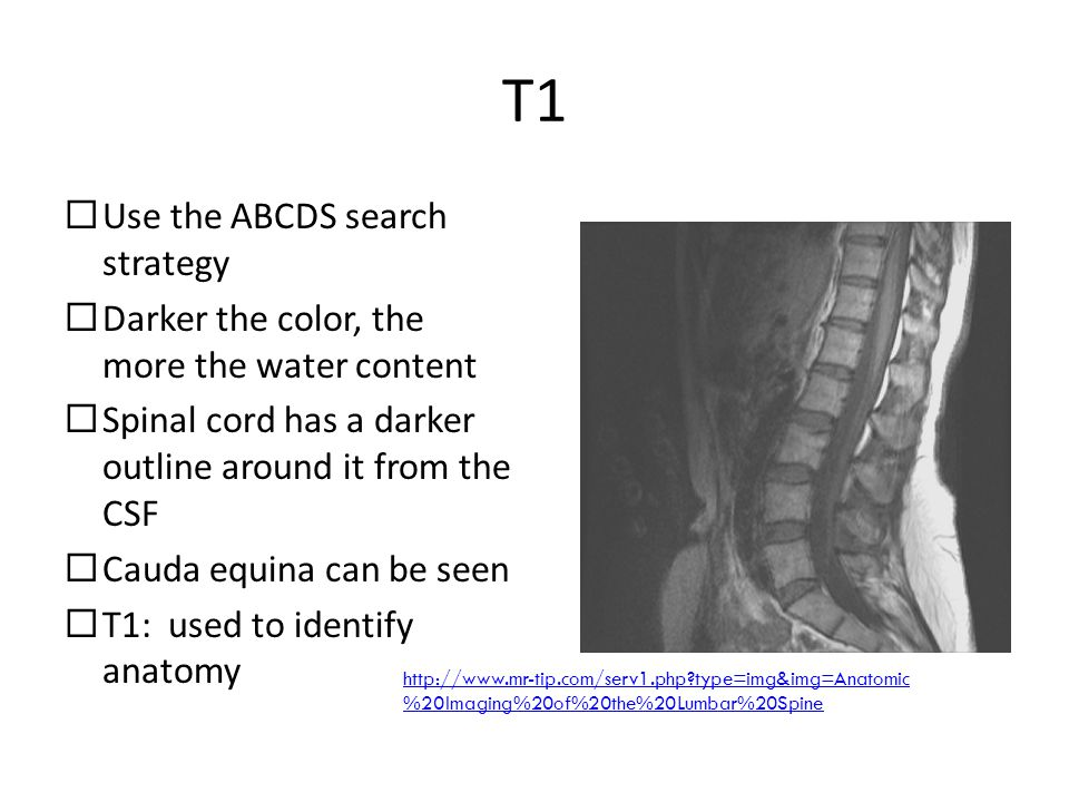 T1 Use the ABCDS search strategy