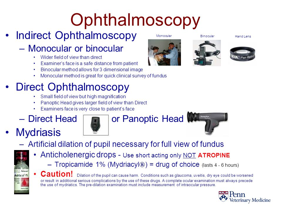 Ophthalmoscopy Indirect Ophthalmoscopy Direct Ophthalmoscopy Mydriasis