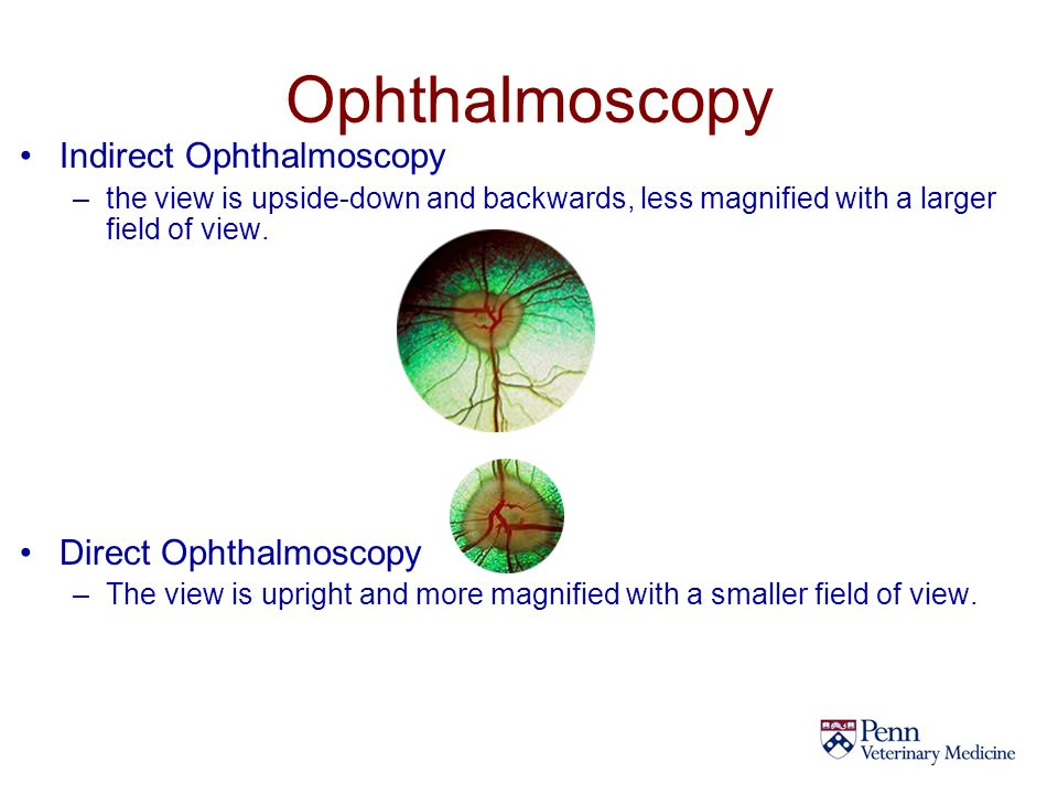 Ophthalmoscopy Indirect Ophthalmoscopy Direct Ophthalmoscopy