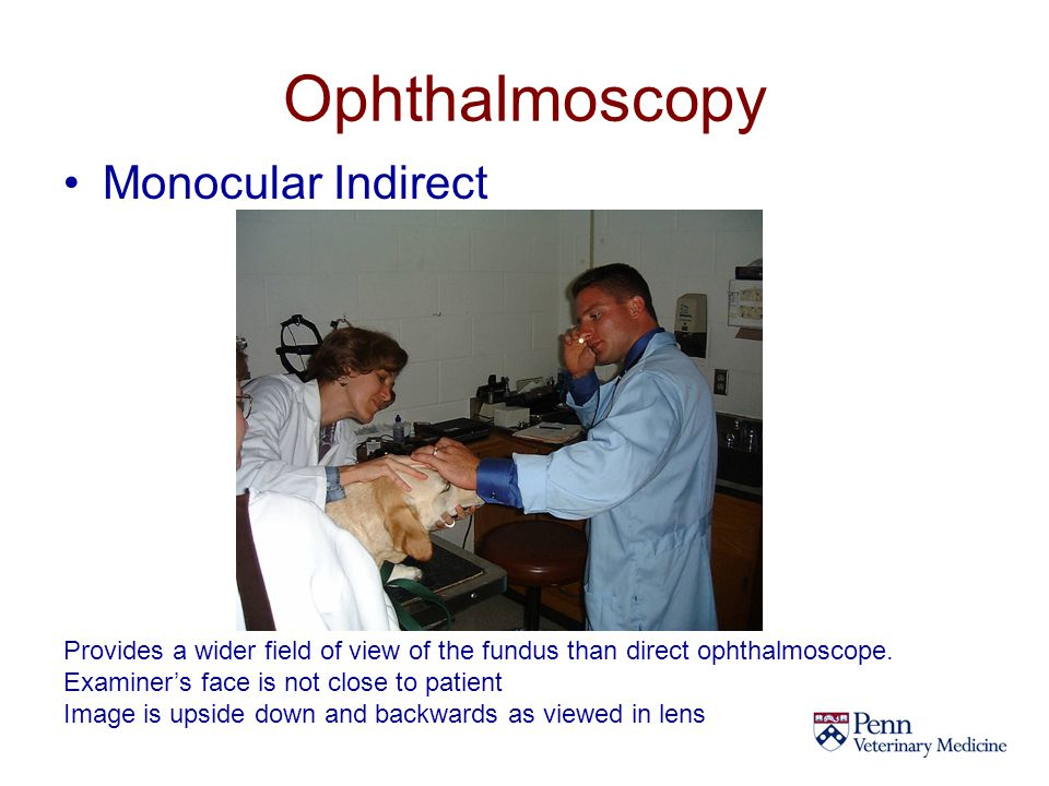 Ophthalmoscopy Monocular Indirect