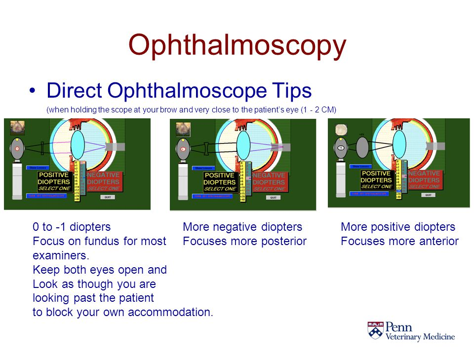 Ophthalmoscopy Direct Ophthalmoscope Tips 0 to -1 diopters