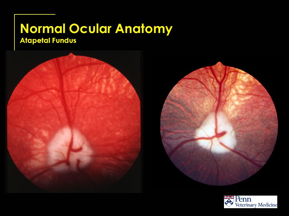 Normal Ocular Anatomy Atapetal Fundus