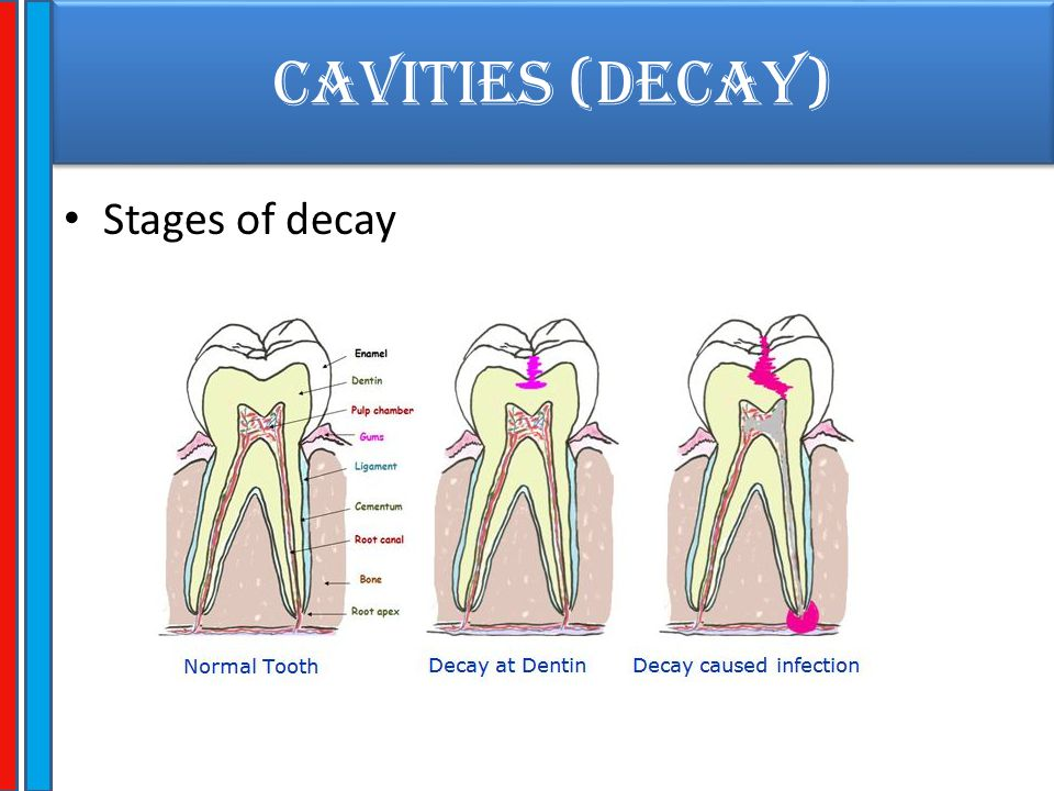 CAVITIES (Decay) Stages of decay
