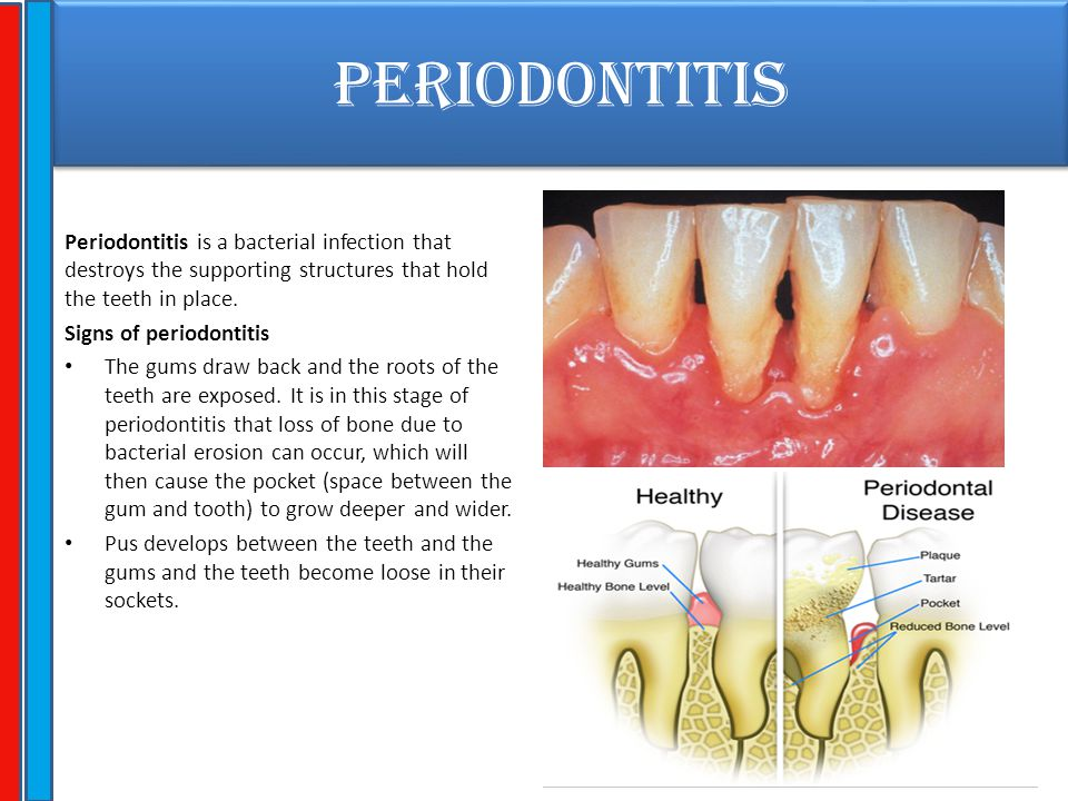 PERIODONTITIS Periodontitis is a bacterial infection that destroys the supporting structures that hold the teeth in place.