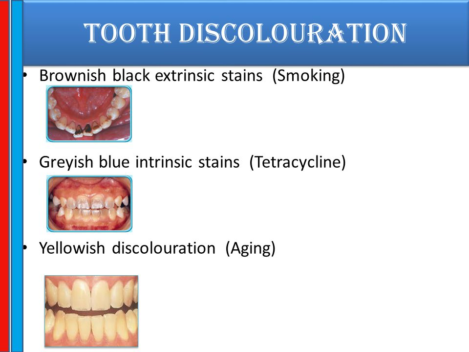 TOOTH DISCOLOURATION Brownish black extrinsic stains (Smoking)