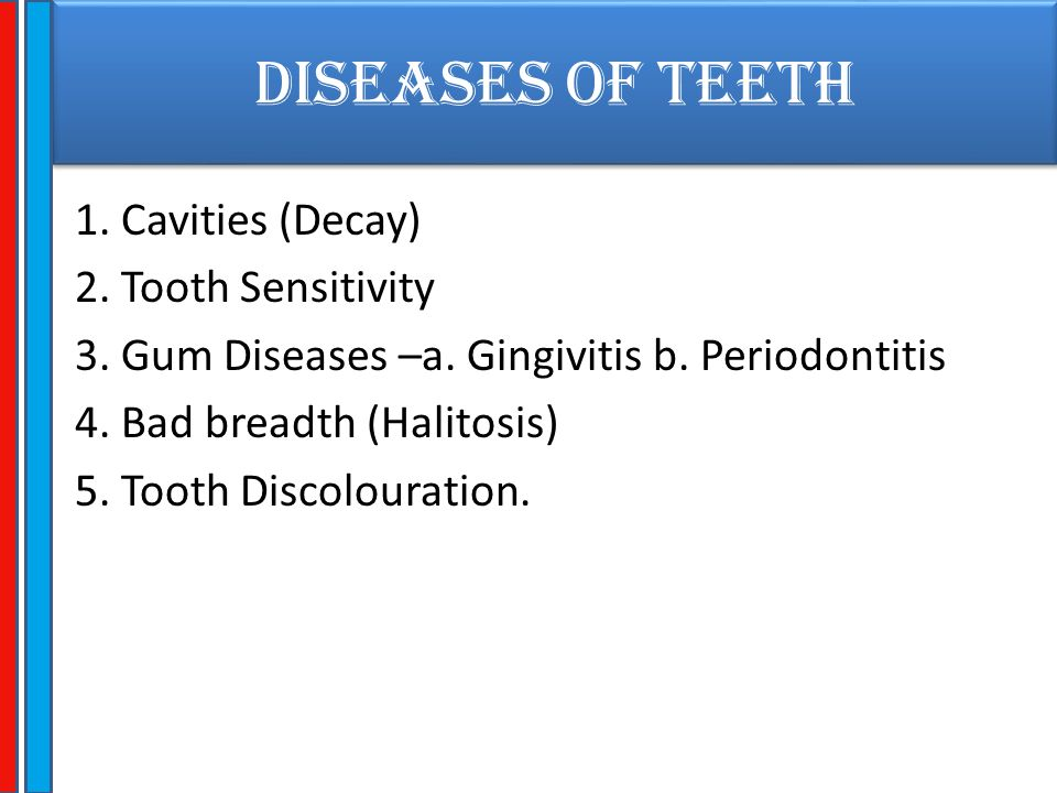 DISEASES OF TEETH